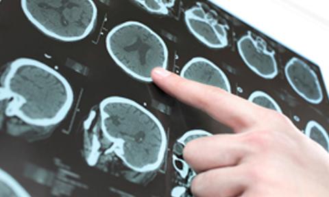 Resonancia-neuroradiologia